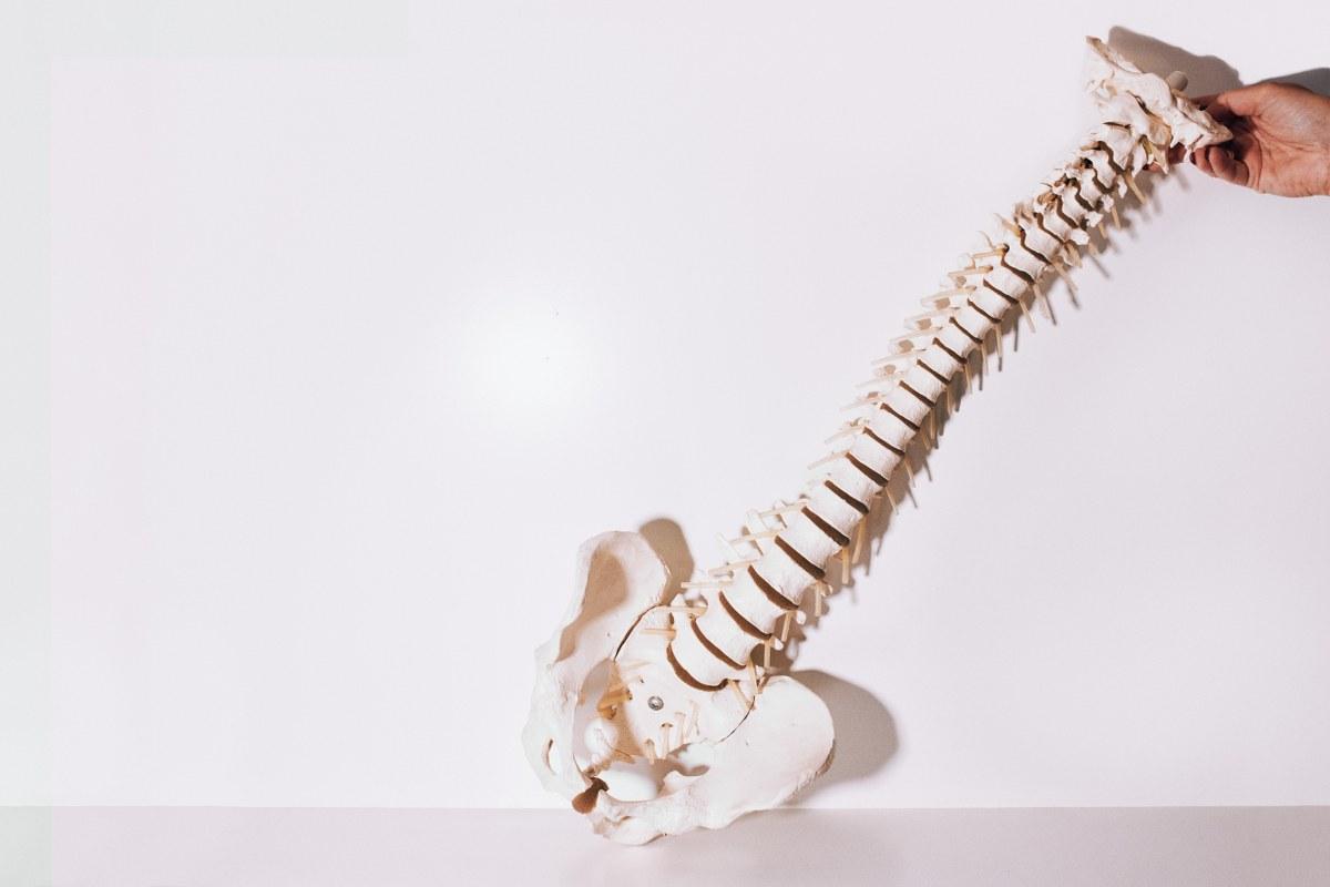 Pijn in SI-gewricht behandeling Chiropraktijk Gouda